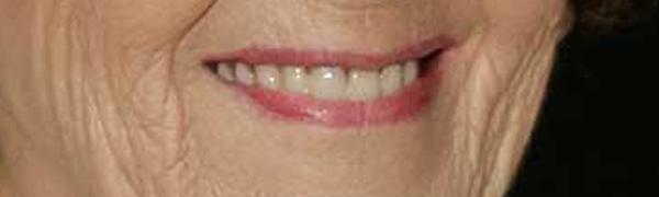 3 foto sorriso sorrisos bem portugueses