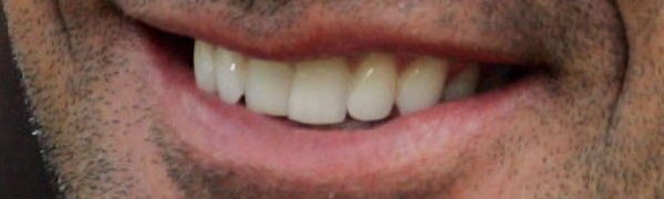 4 foto sorriso sorrisos bem portugueses