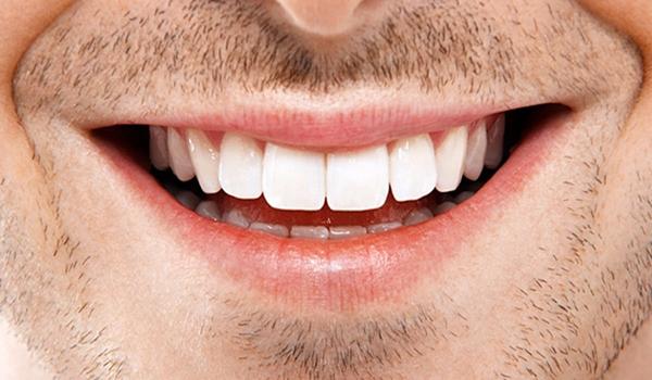 Dicas para ter um hálito fresco e saudável - Sorria muito
