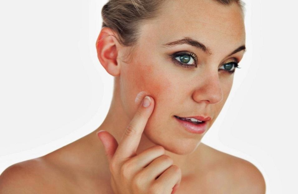 Truques naturais para ter uma pele perfeita