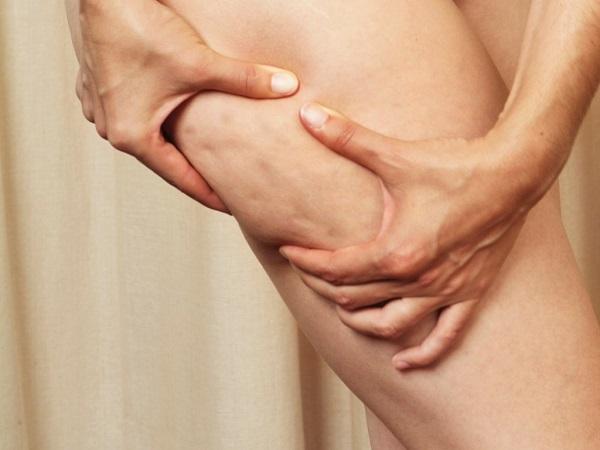 7 Benefícios do crómio para à nossa saúde- Ajuda a combater a celulite